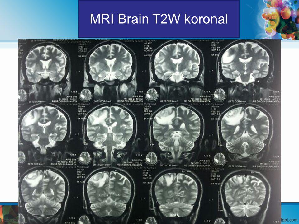 MRI Brain T2W koronal