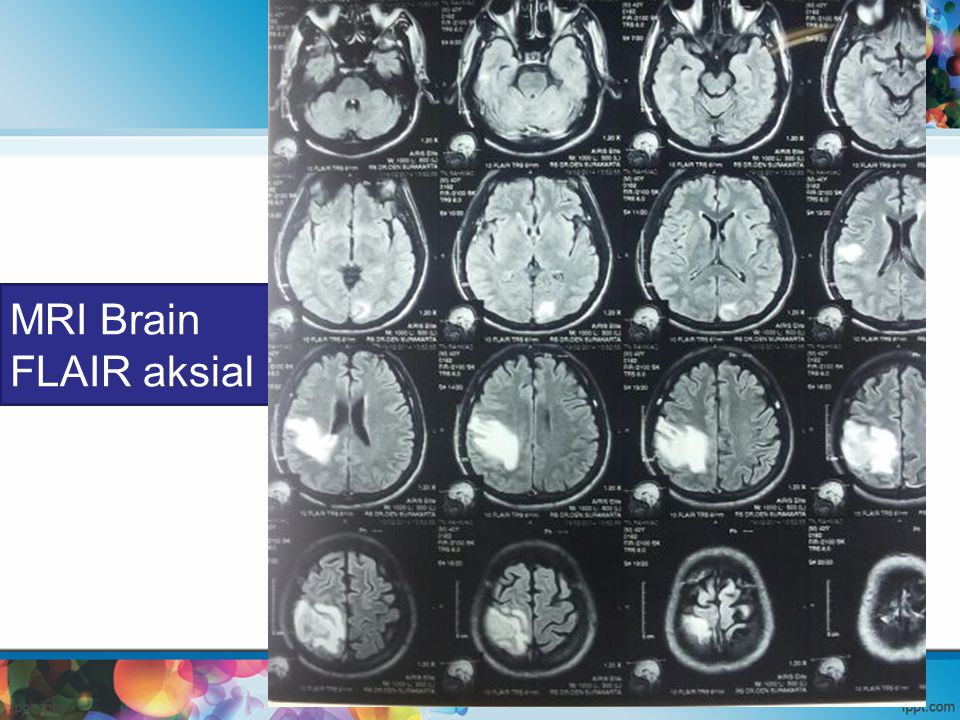MRI Brain FLAIR aksial