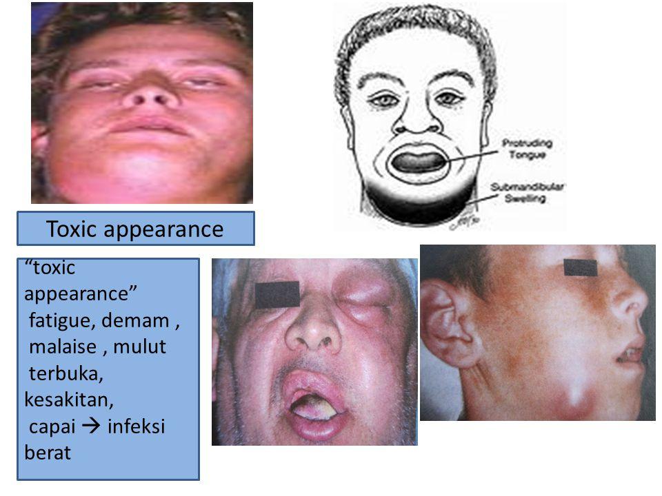 Toxic appearance toxic appearance fatigue, demam , malaise , mulut terbuka, kesakitan, capai  infeksi berat.