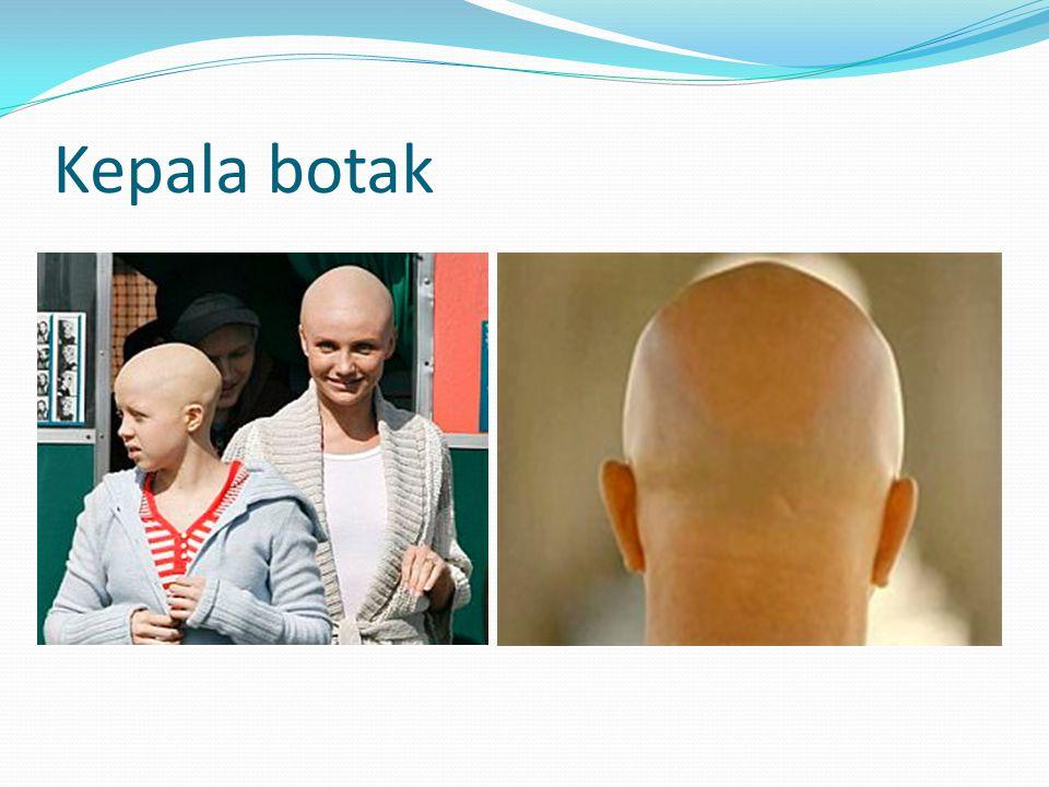 Kepala botak