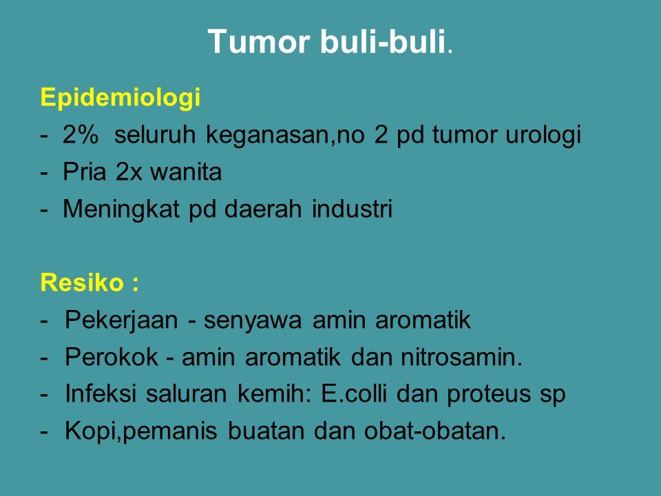 Tumor buli-buli. Epidemiologi