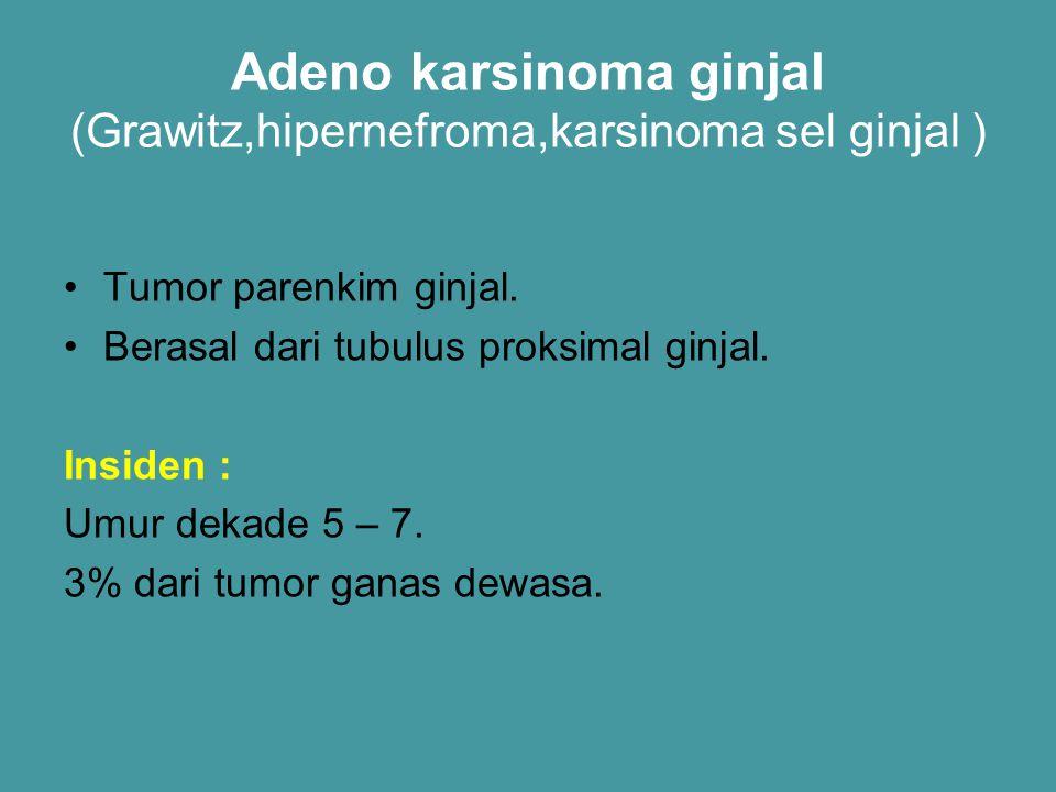 Adeno karsinoma ginjal (Grawitz,hipernefroma,karsinoma sel ginjal )