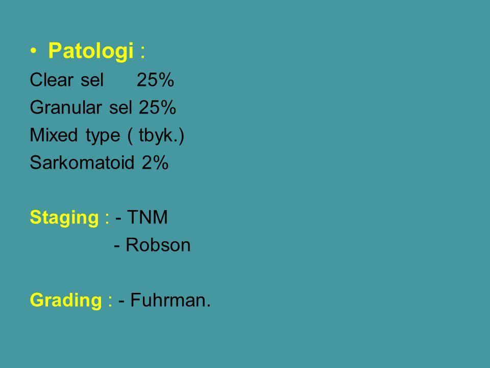 Patologi : Clear sel 25% Granular sel 25% Mixed type ( tbyk.)