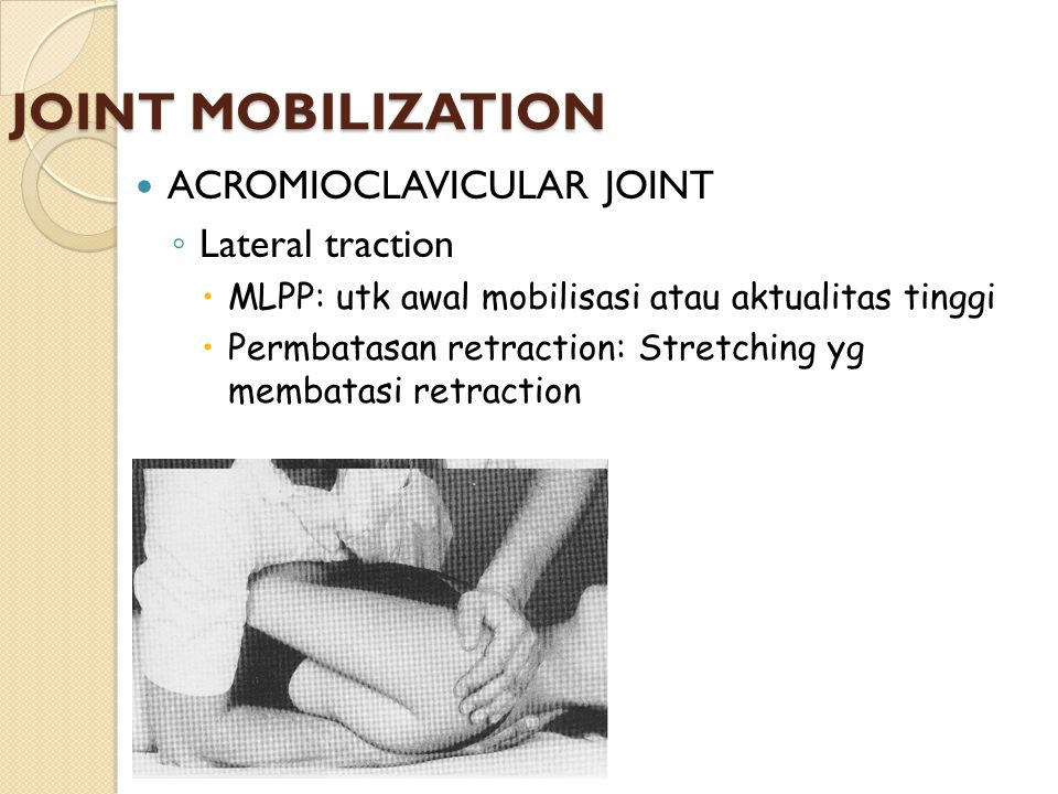 JOINT MOBILIZATION ACROMIOCLAVICULAR JOINT Lateral traction
