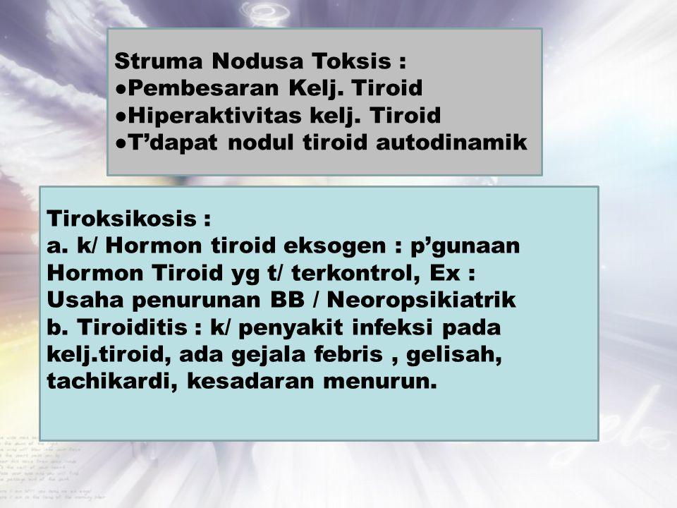 Struma Nodusa Toksis : ●Pembesaran Kelj. Tiroid. ●Hiperaktivitas kelj. Tiroid. ●T'dapat nodul tiroid autodinamik.