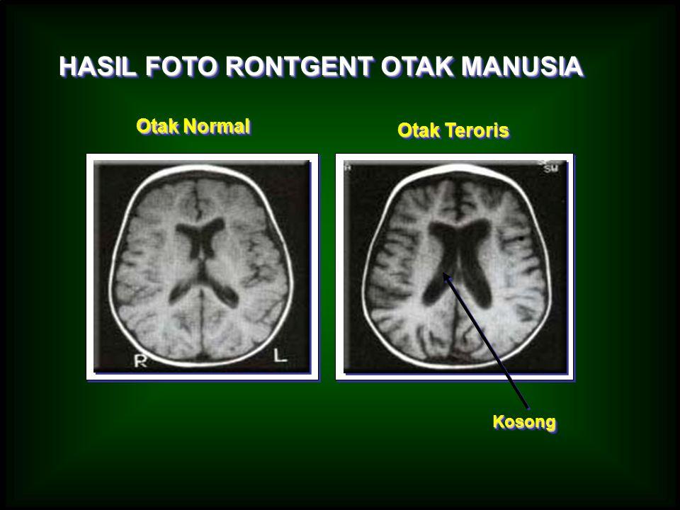 HASIL FOTO RONTGENT OTAK MANUSIA