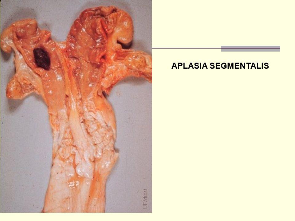 APLASIA SEGMENTALIS
