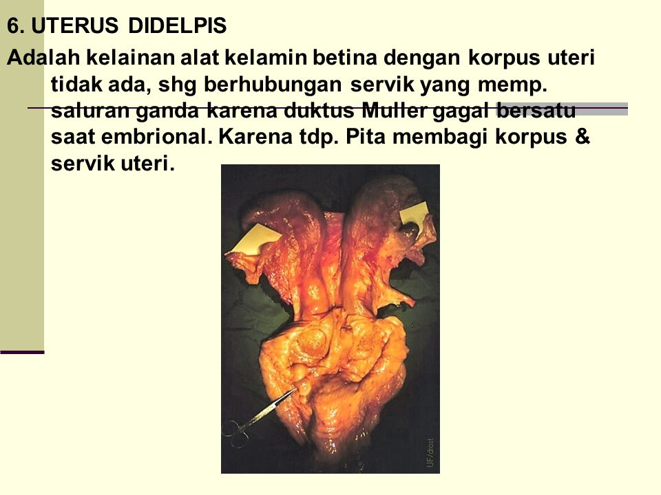 6. UTERUS DIDELPIS