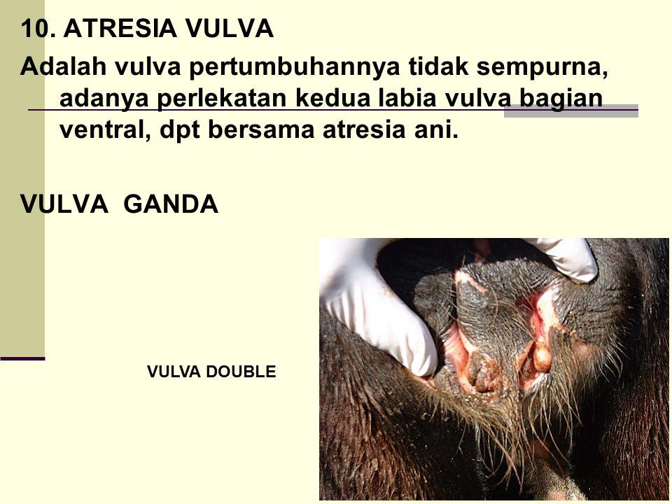 10. ATRESIA VULVA Adalah vulva pertumbuhannya tidak sempurna, adanya perlekatan kedua labia vulva bagian ventral, dpt bersama atresia ani.