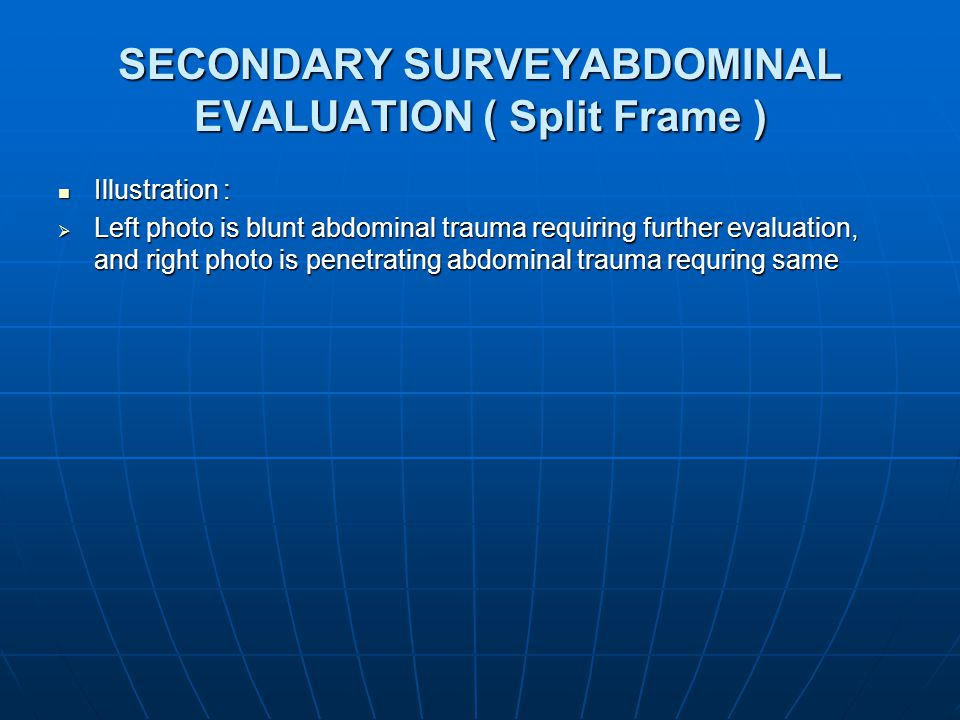 SECONDARY SURVEYABDOMINAL EVALUATION ( Split Frame )