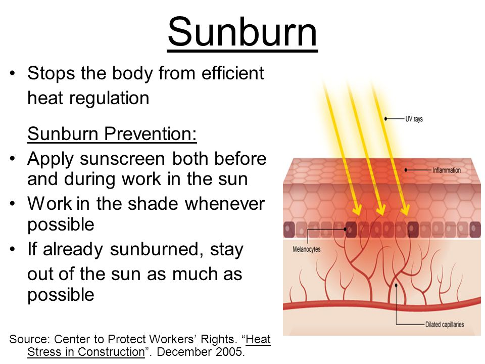 Sunburn Stops the body from efficient heat regulation