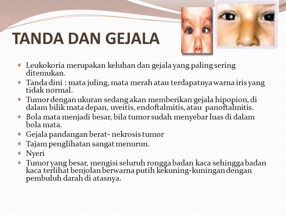 TANDA DAN GEJALA Leukokoria merupakan keluhan dan gejala yang paling sering ditemukan.