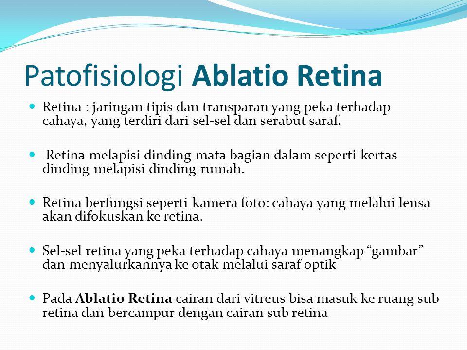 Patofisiologi Ablatio Retina