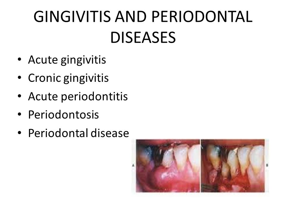 GINGIVITIS AND PERIODONTAL DISEASES