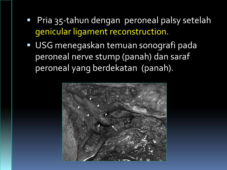 Pria 35-tahun dengan peroneal palsy setelah genicular ligament reconstruction.