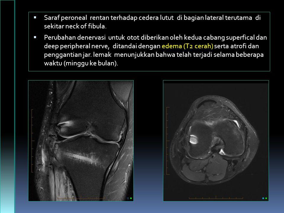 Saraf peroneal rentan terhadap cedera lutut di bagian lateral terutama di sekitar neck of fibula.