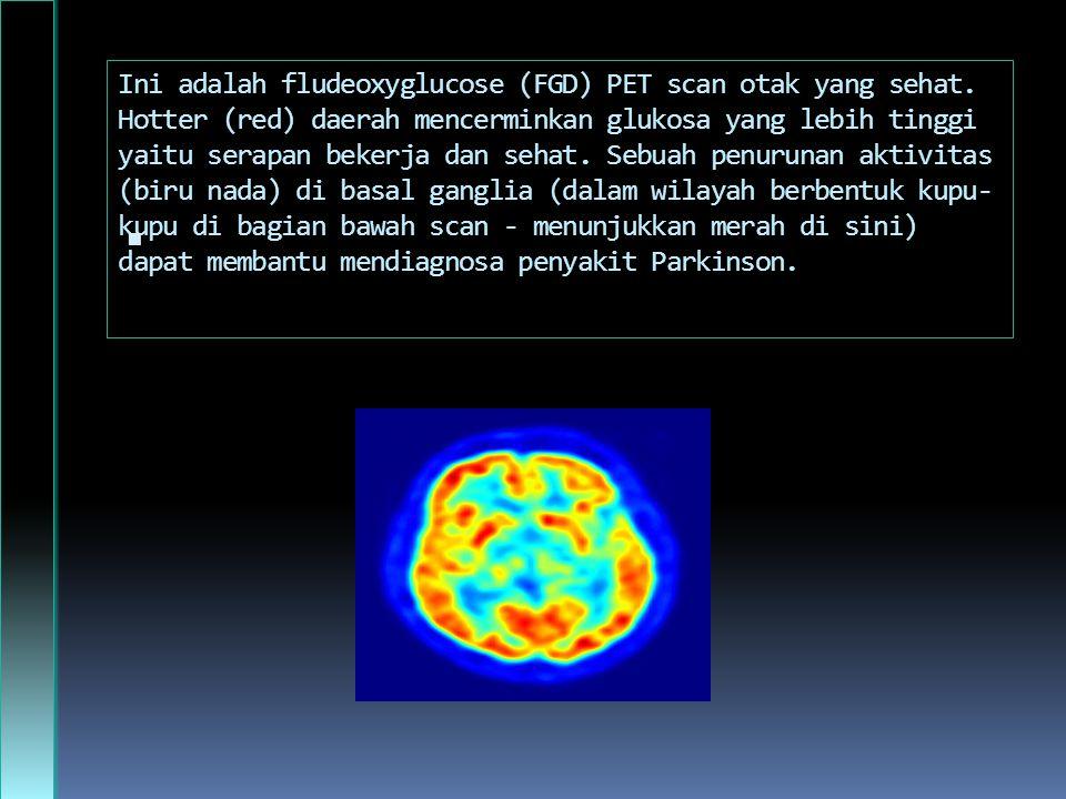 Ini adalah fludeoxyglucose (FGD) PET scan otak yang sehat