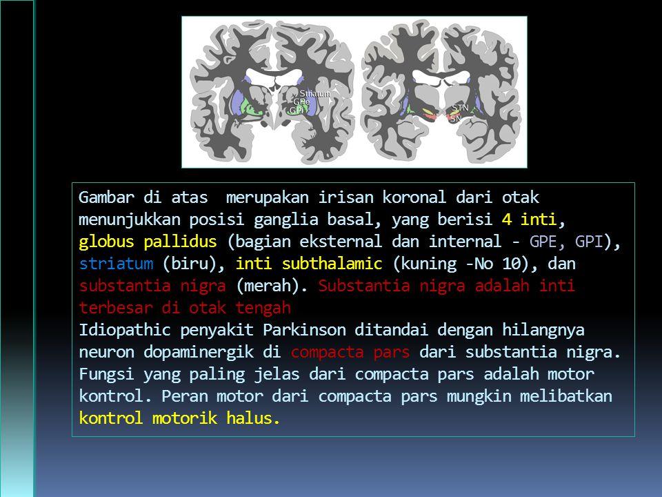 Gambar di atas merupakan irisan koronal dari otak menunjukkan posisi ganglia basal, yang berisi 4 inti, globus pallidus (bagian eksternal dan internal - GPE, GPI), striatum (biru), inti subthalamic (kuning -No 10), dan substantia nigra (merah).