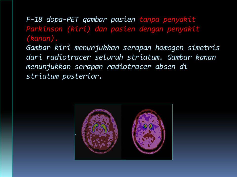 F-18 dopa-PET gambar pasien tanpa penyakit Parkinson (kiri) dan pasien dengan penyakit (kanan).
