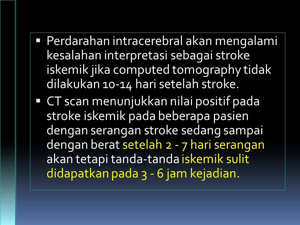 Perdarahan intracerebral akan mengalami kesalahan interpretasi sebagai stroke iskemik jika computed tomography tidak dilakukan 10-14 hari setelah stroke.