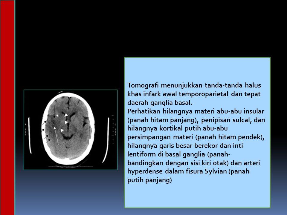 Tomografi menunjukkan tanda-tanda halus khas infark awal temporoparietal dan tepat daerah ganglia basal.
