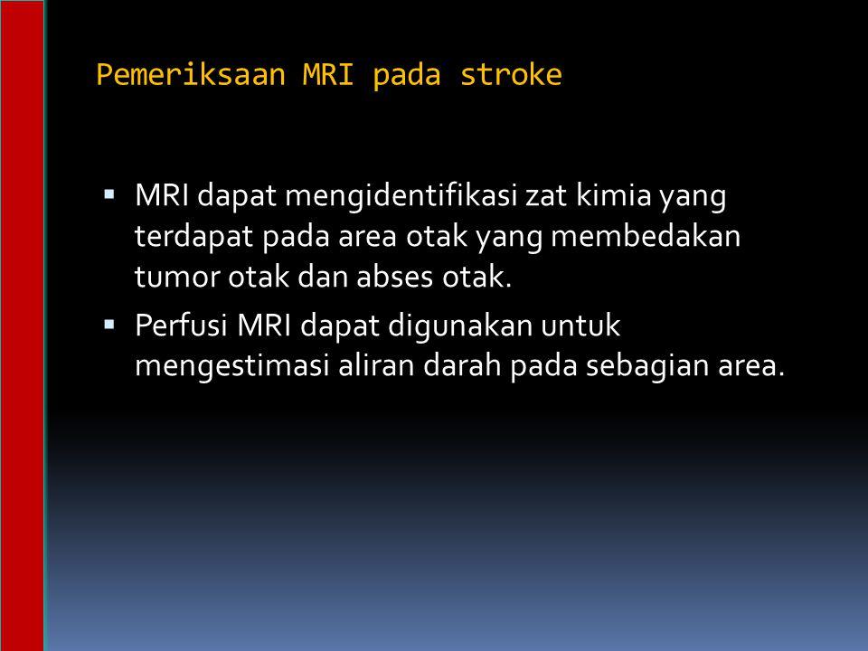 Pemeriksaan MRI pada stroke