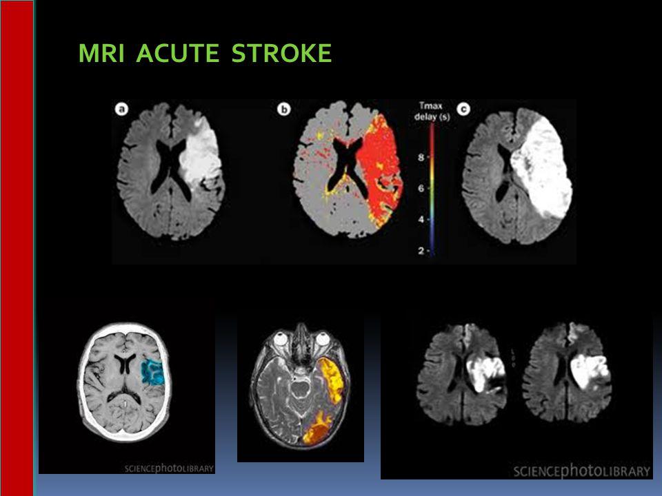 MRI ACUTE STROKE
