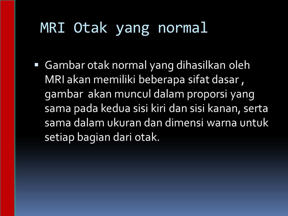 MRI Otak yang normal