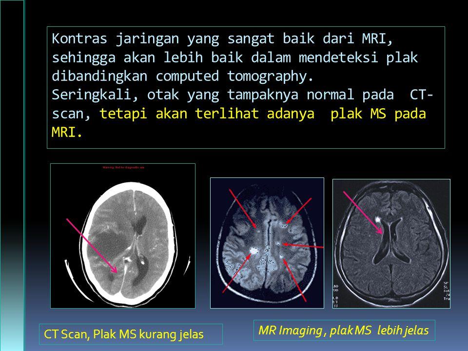 Kontras jaringan yang sangat baik dari MRI, sehingga akan lebih baik dalam mendeteksi plak dibandingkan computed tomography. Seringkali, otak yang tampaknya normal pada CT-scan, tetapi akan terlihat adanya plak MS pada MRI.