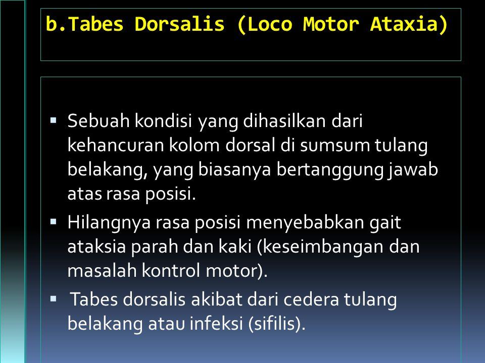 b.Tabes Dorsalis (Loco Motor Ataxia)