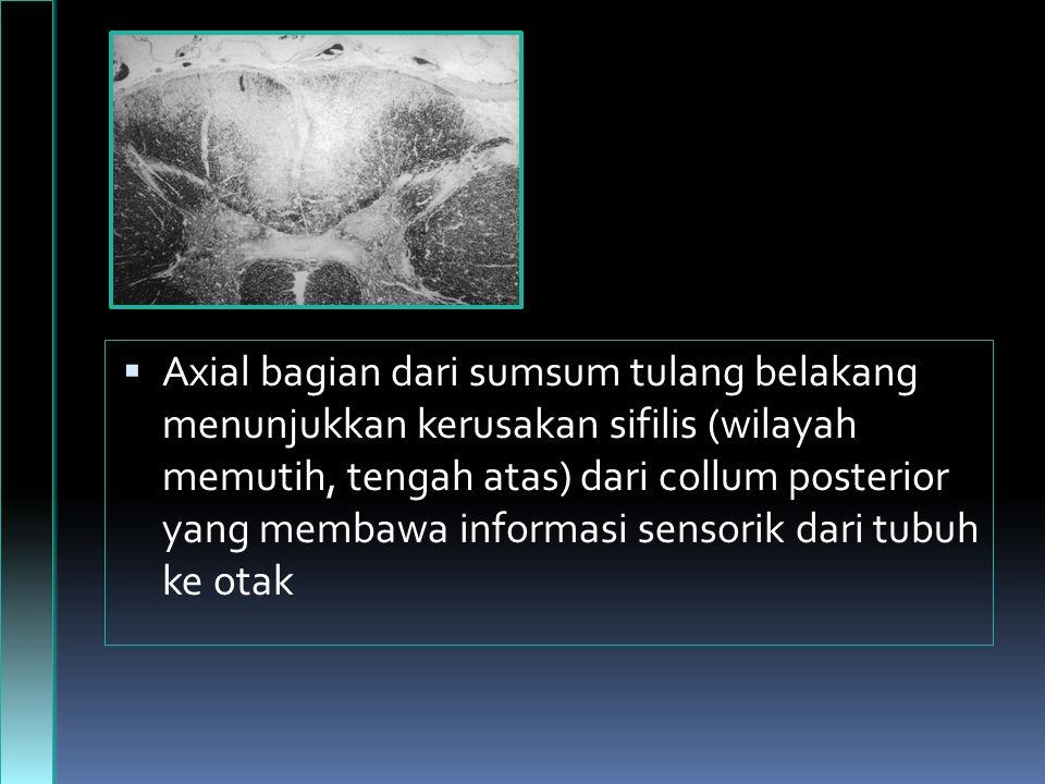 Axial bagian dari sumsum tulang belakang menunjukkan kerusakan sifilis (wilayah memutih, tengah atas) dari collum posterior yang membawa informasi sensorik dari tubuh ke otak