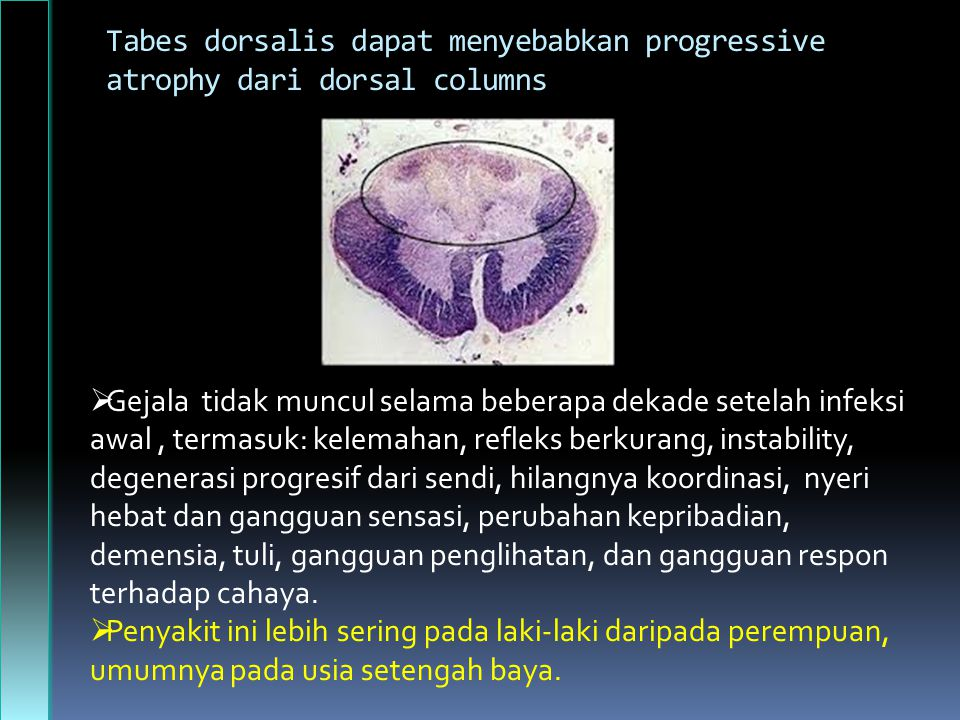 Tabes dorsalis dapat menyebabkan progressive atrophy dari dorsal columns