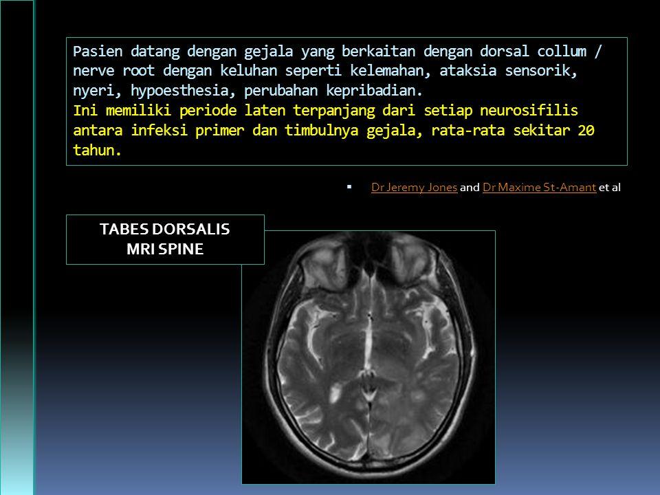 TABES DORSALIS MRI SPINE