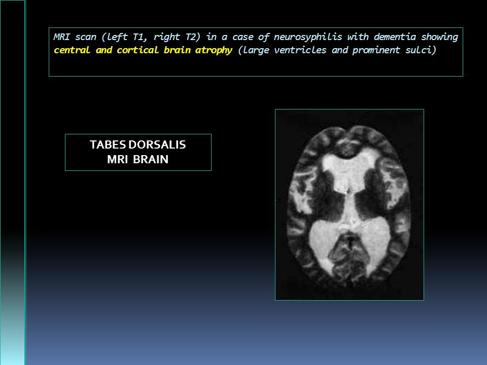 TABES DORSALIS MRI BRAIN