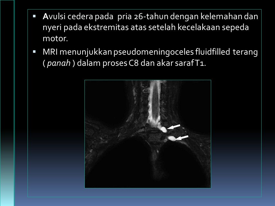Avulsi cedera pada pria 26-tahun dengan kelemahan dan nyeri pada ekstremitas atas setelah kecelakaan sepeda motor.