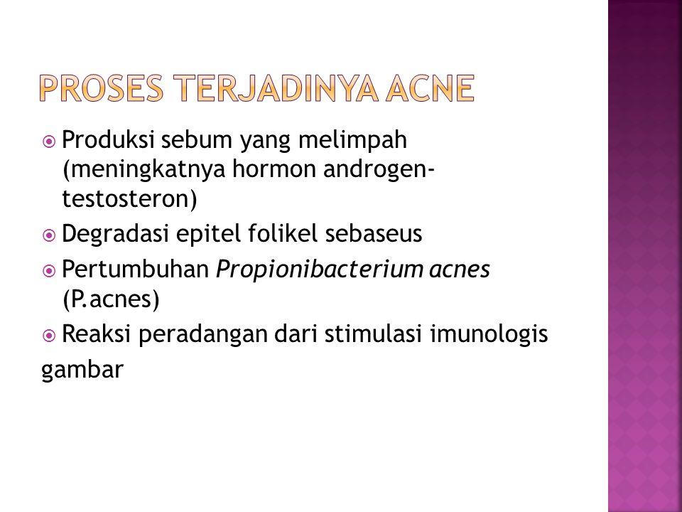 Proses terjadinya ACNE