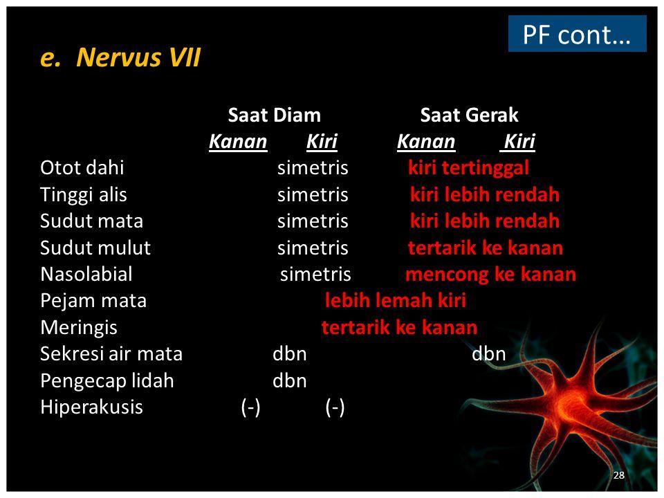 PF cont… e. Nervus VII Saat Diam Saat Gerak Kanan Kiri Kanan Kiri