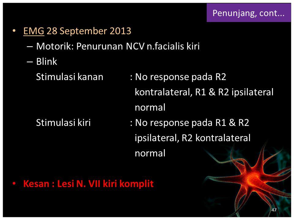 Motorik : Penurunan NCV n.facialis kiri Blink