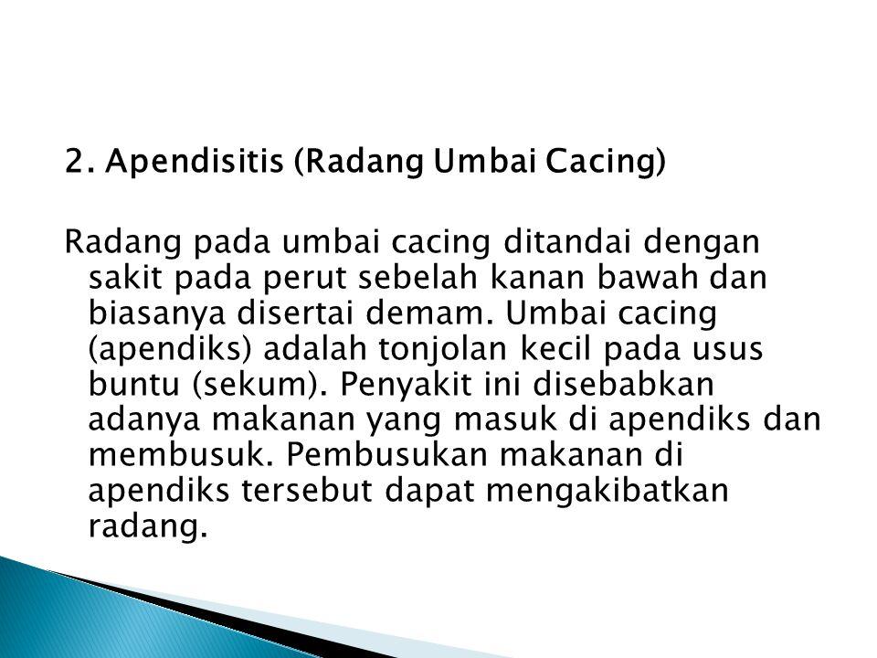 2. Apendisitis (Radang Umbai Cacing)