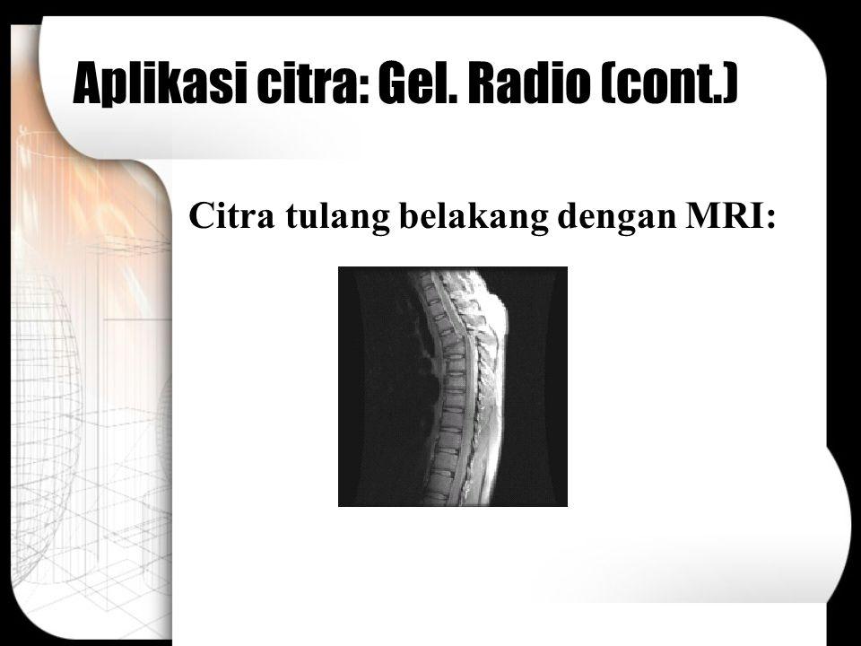 Aplikasi citra: Gel. Radio (cont.)