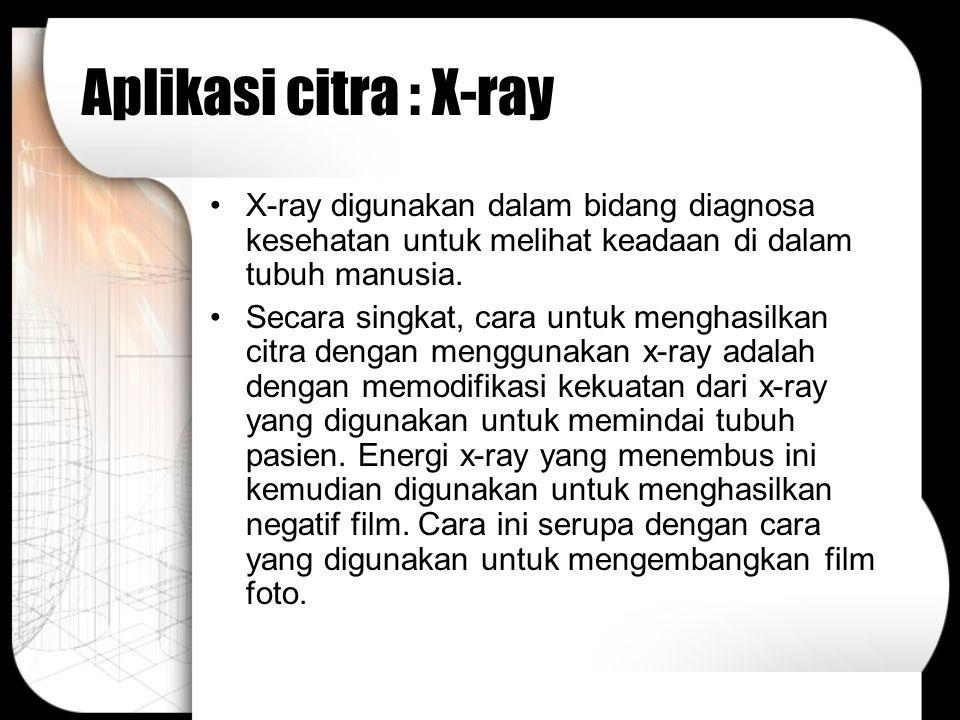 Aplikasi citra : X-ray X-ray digunakan dalam bidang diagnosa kesehatan untuk melihat keadaan di dalam tubuh manusia.
