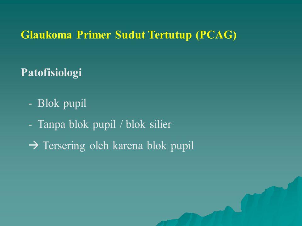 Glaukoma Primer Sudut Tertutup (PCAG)