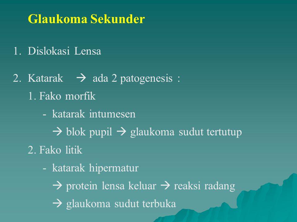 Glaukoma Sekunder Dislokasi Lensa
