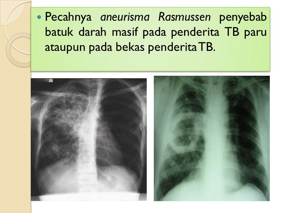 Pecahnya aneurisma Rasmussen penyebab batuk darah masif pada penderita TB paru ataupun pada bekas penderita TB.