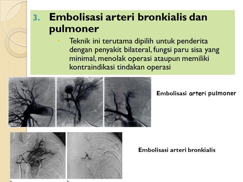 Embolisasi arteri bronkialis dan pulmoner