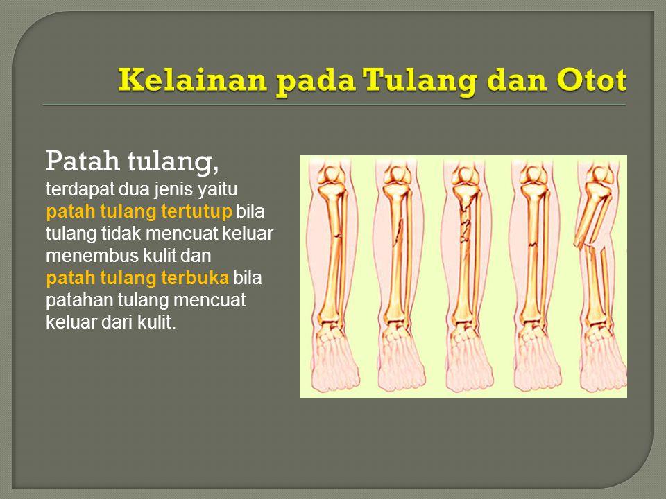Kelainan pada Tulang dan Otot