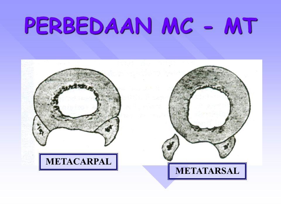 PERBEDAAN MC - MT METACARPAL METATARSAL