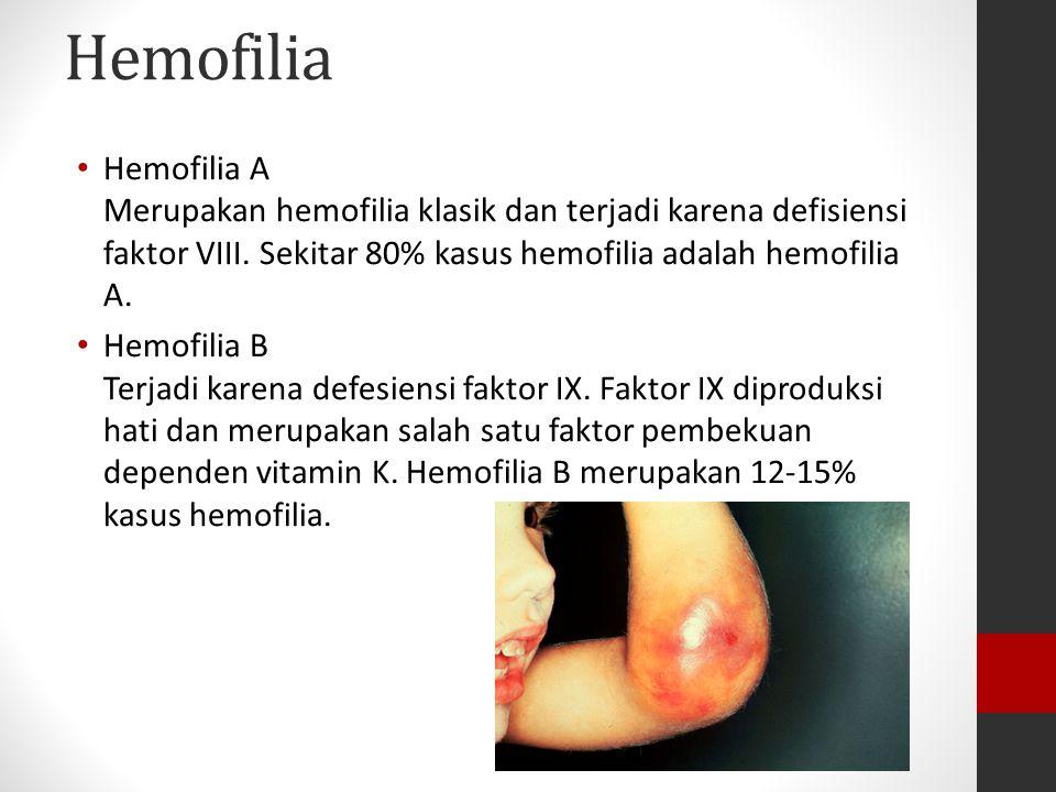 Hemofilia Hemofilia A Merupakan hemofilia klasik dan terjadi karena defisiensi faktor VIII. Sekitar 80% kasus hemofilia adalah hemofilia A.