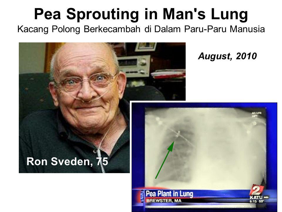 Pea Sprouting in Man s Lung Kacang Polong Berkecambah di Dalam Paru-Paru Manusia