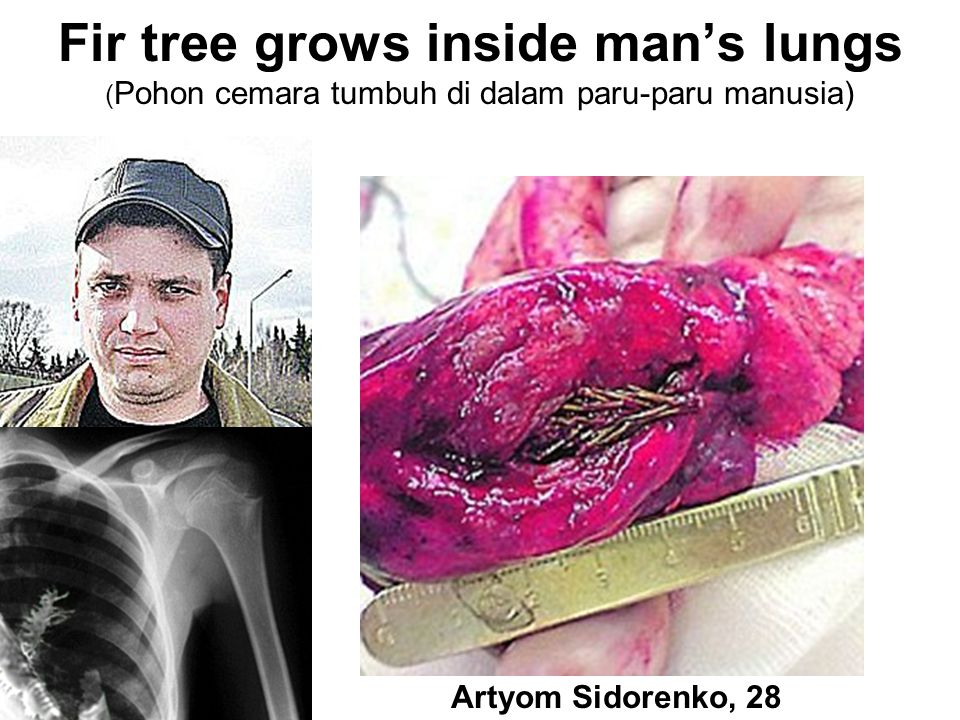 Fir tree grows inside man's lungs (Pohon cemara tumbuh di dalam paru-paru manusia)